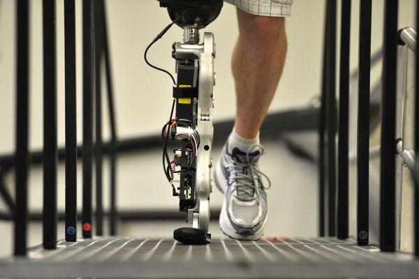 Bionic Legs