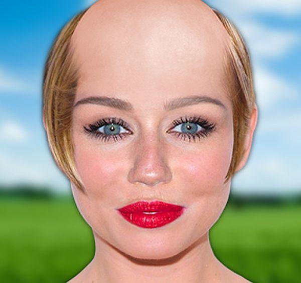 The Baldy App